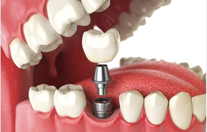 زراعة الأسنان انواع زراعة الأسنان في ايران طب طهران علاج آمن